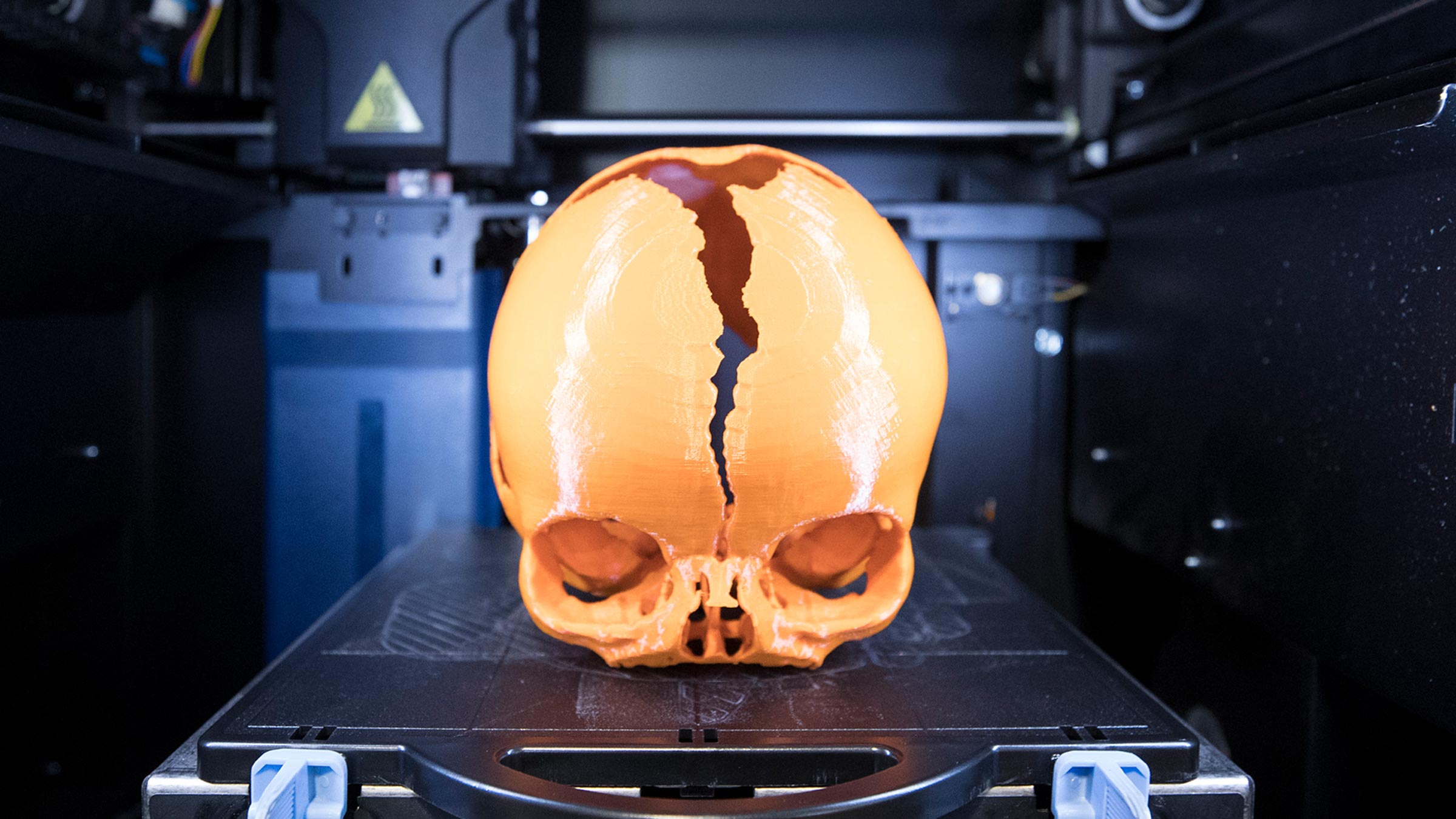 Surgeon Uses 3-D Printed Skulls to Prepare for Delicate Procedures