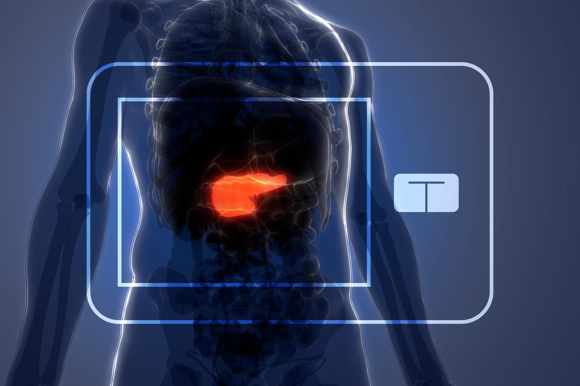 FDA Approves UVA-Developed Artificial Pancreas
