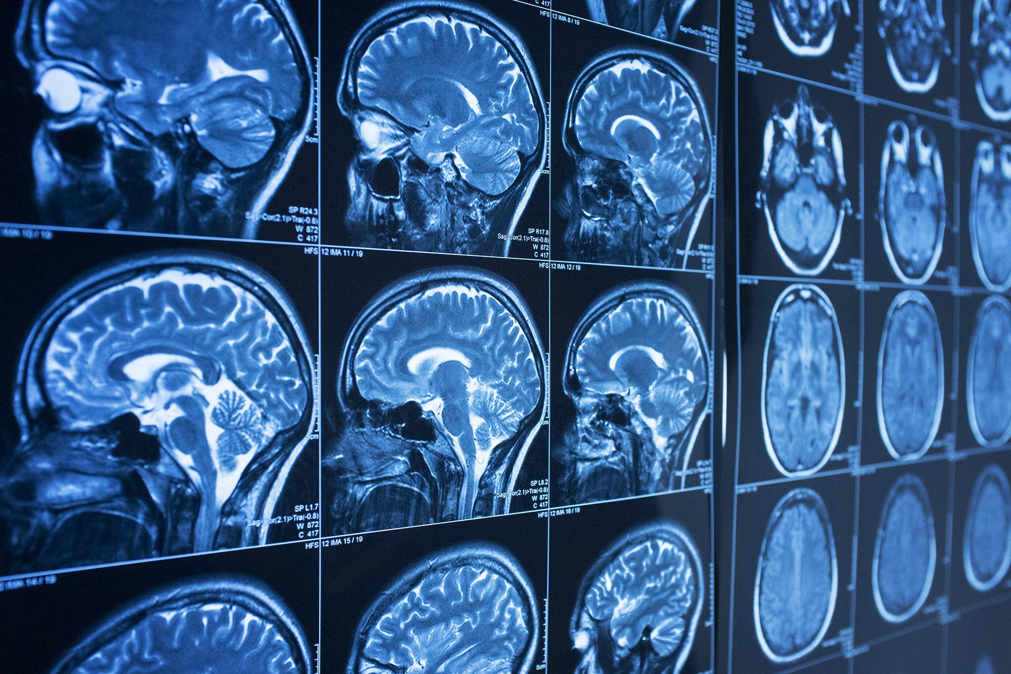 Targeting Calcium Overload Could Improve Stroke Outcomes, UVA Research Suggests