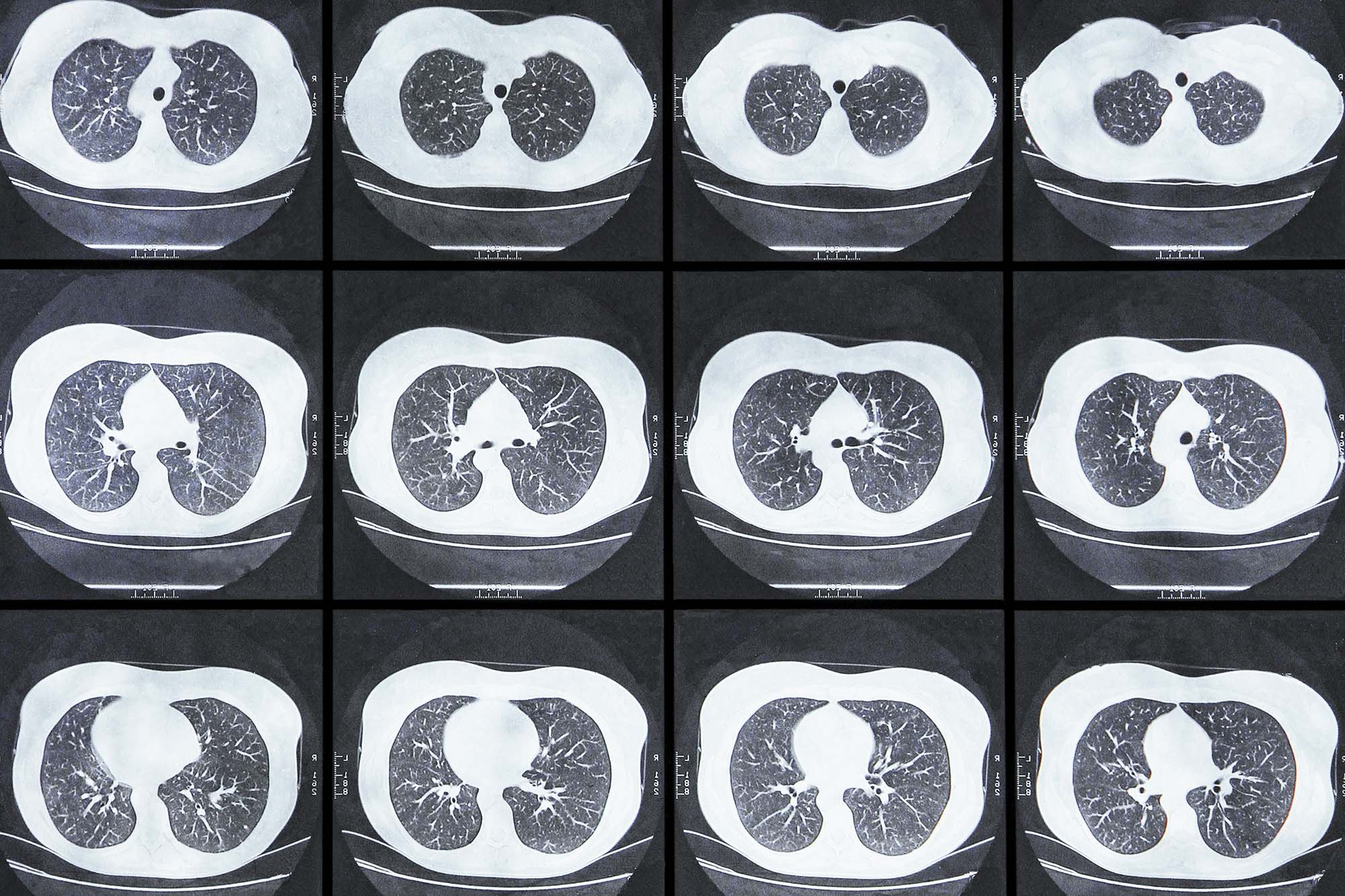 Lung Cancer: UVA Health Expert Helps Develop New National Screening Guidelines