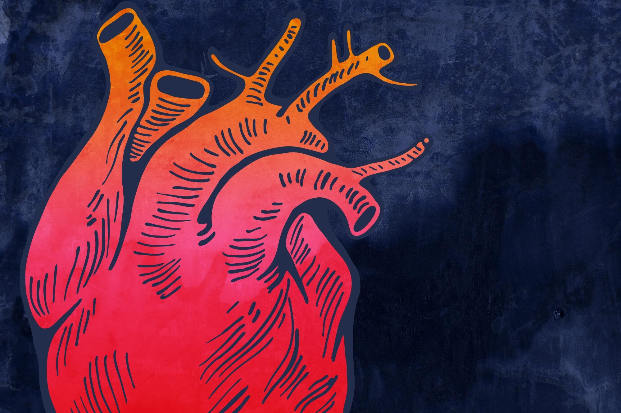 Heart Attacks, Heart Failure, Stroke: COVID-19's Dangerous Cardio Complications