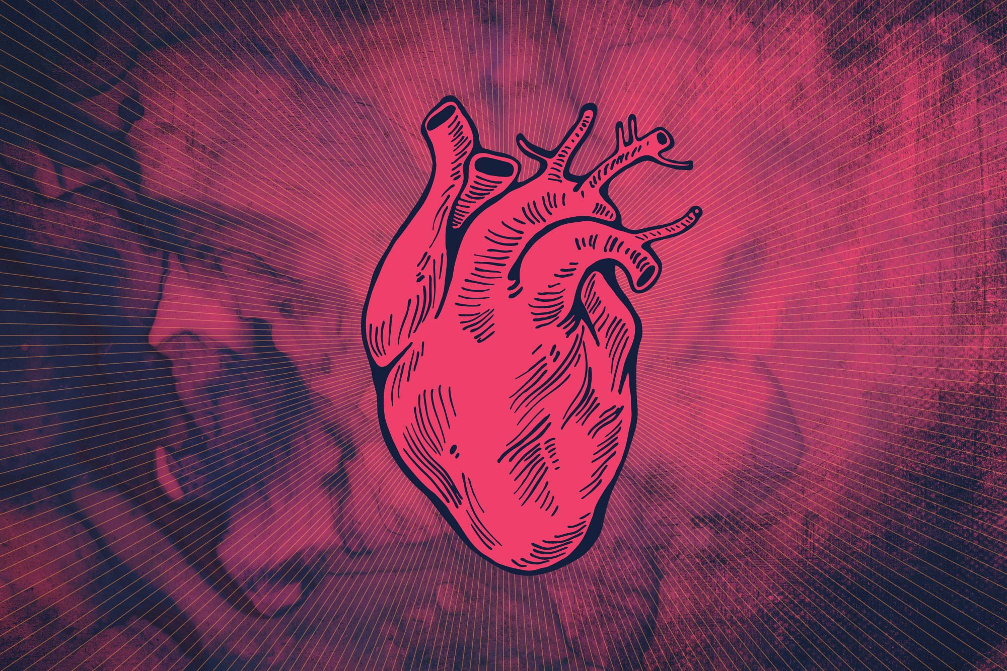 Hypertrophic cardiomyopathy can present at any age, and it is the most common cause of sudden cardiac death in young athletes.
