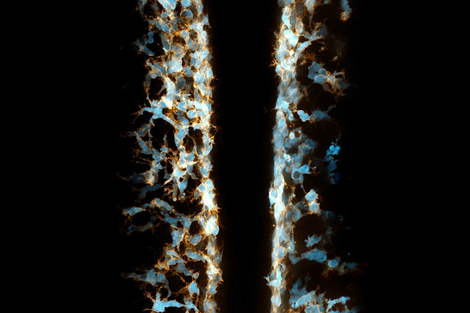Zebrafish embryo neural crest cells (in blue) remove dead cells prior to the development of immune system cells that will take on that task.