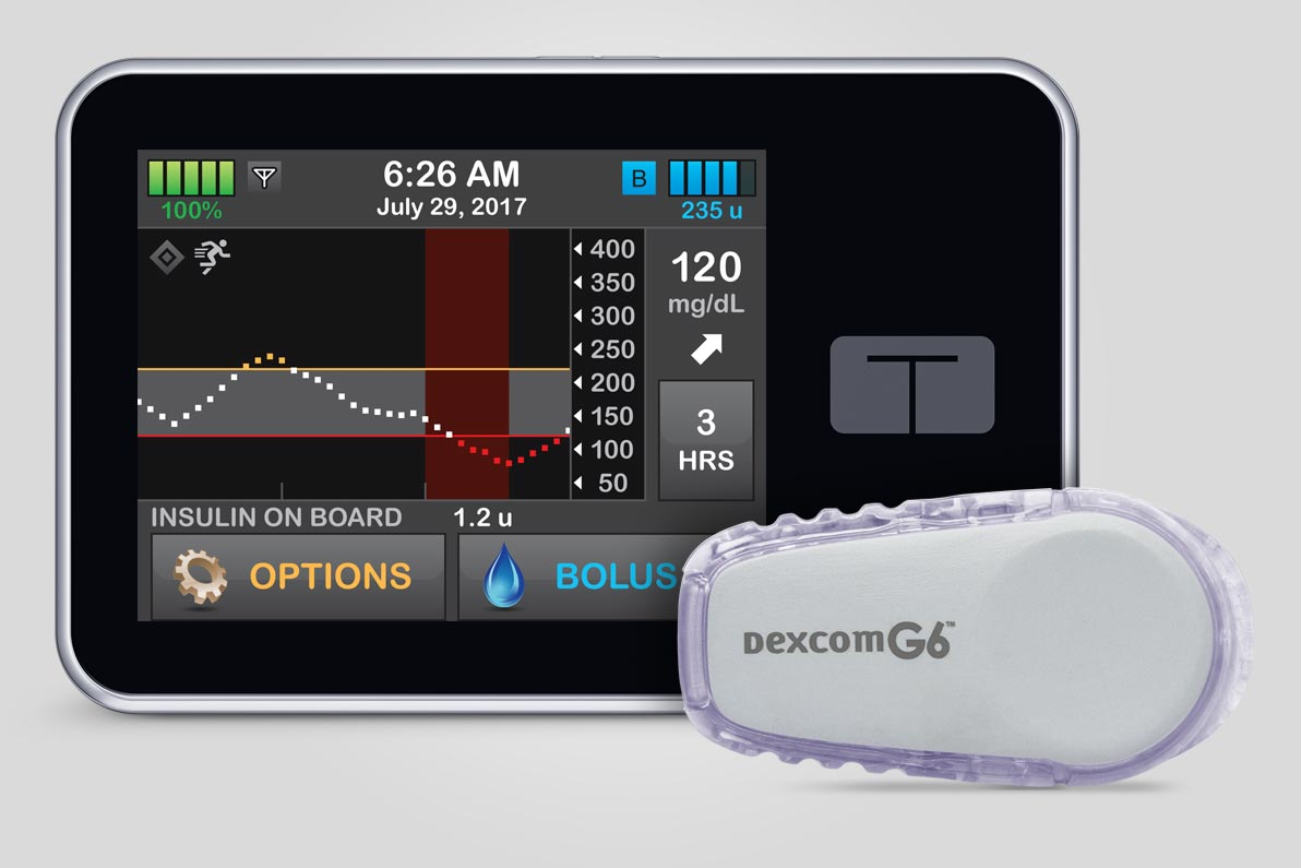 The Control-IQ artificial pancreas system was derived from research done at the Center for Diabetes Technology at the University of Virginia.
