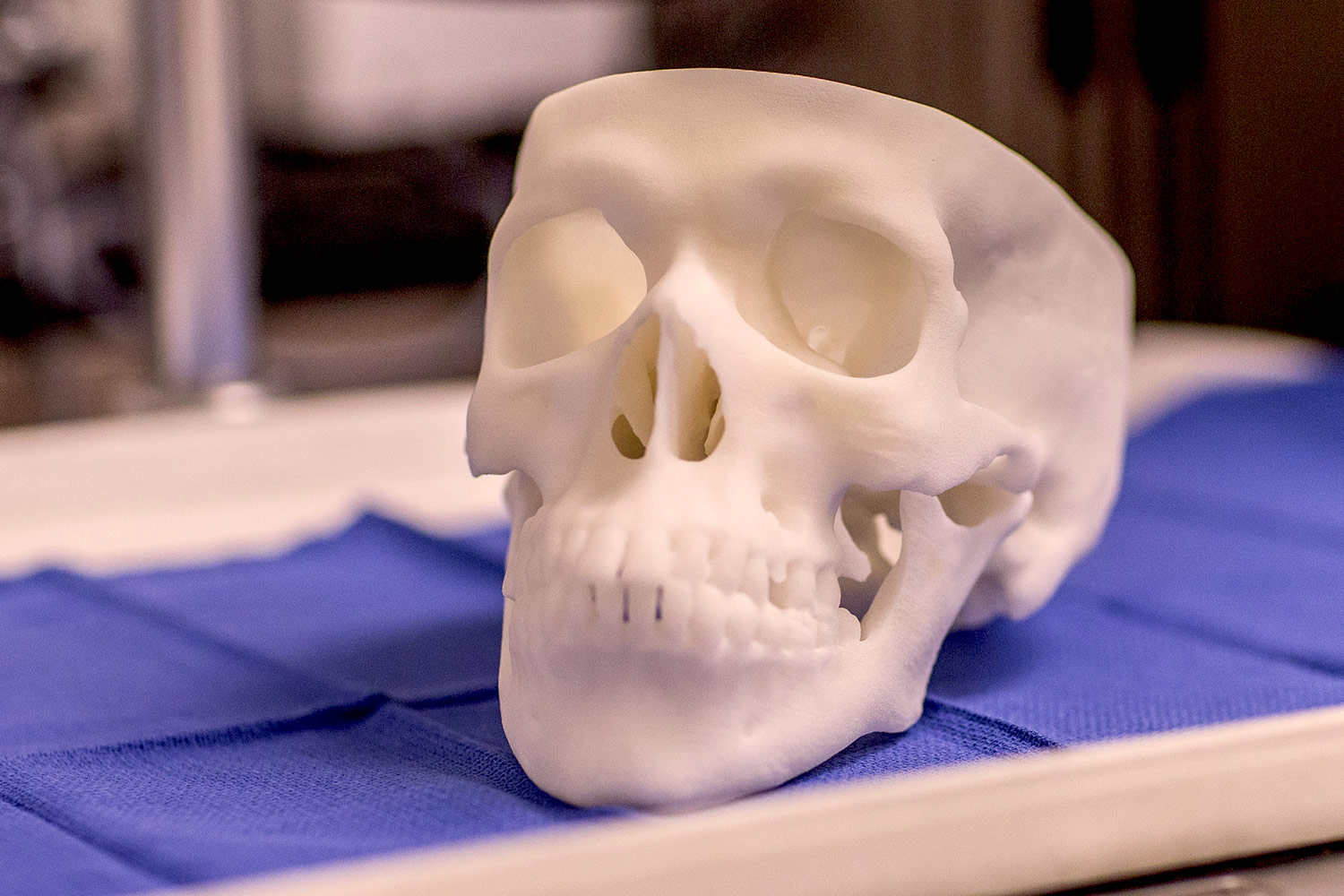 Patient CT or MRI scans are converted to 3-D printable files to create the 3-D printed skull models.