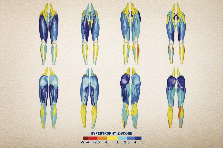 Chart of sprinters' leg muscles