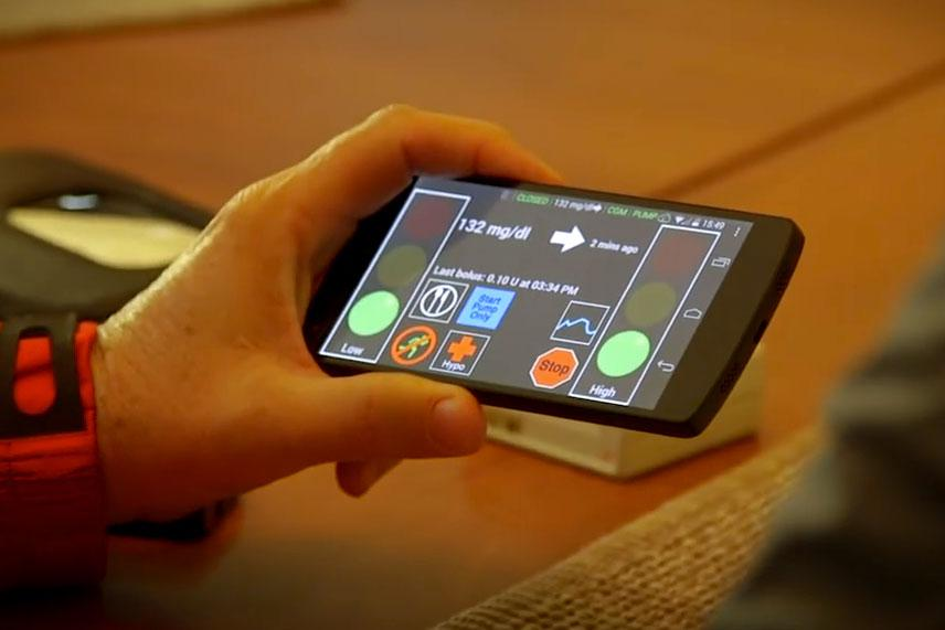 The artificial pancreas system, developed at UVA, uses smartphone technology to monitor and stabilize insulin levels.