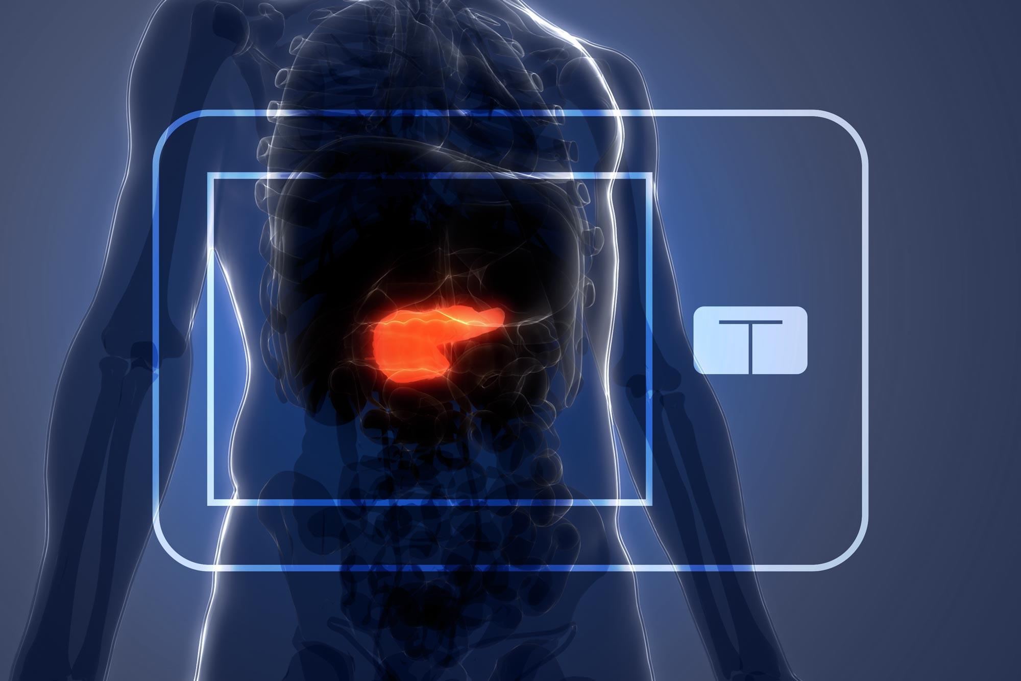 The artificial pancreas system tracks blood glucose levels with a continuous glucose monitor and automatically delivers the hormone insulin as needed.