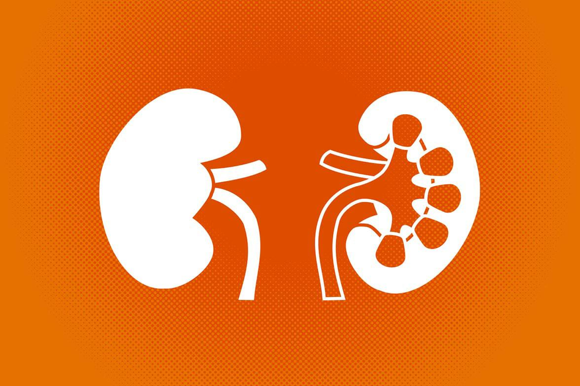 Kidney Disease Report Charts Mammoth Problem In The Us Uva Today