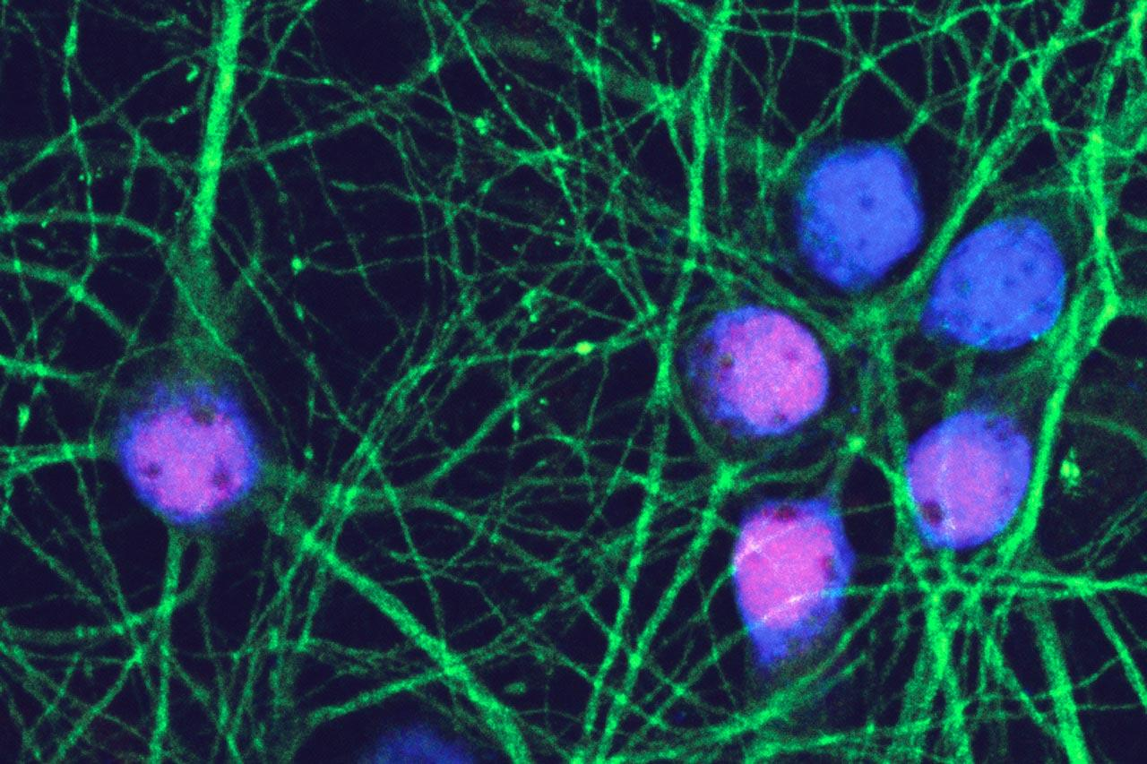 The reddish-blue mouse neurons in this image have reentered the cell cycle after exposure to amyloid beta oligomers, and thus are primed for death.