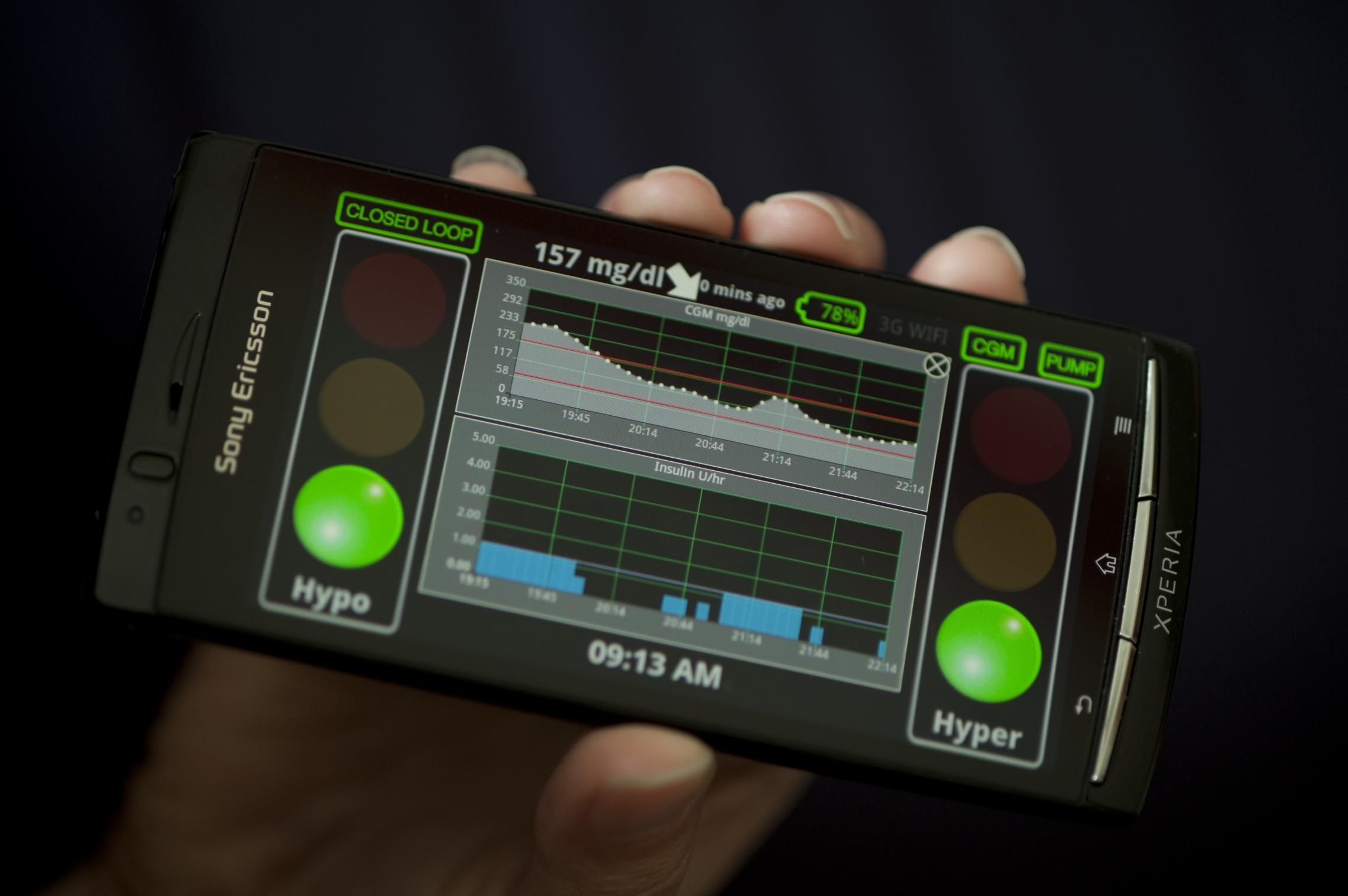 Pioneering Artificial Pancreas, Developed at UVA, to ...