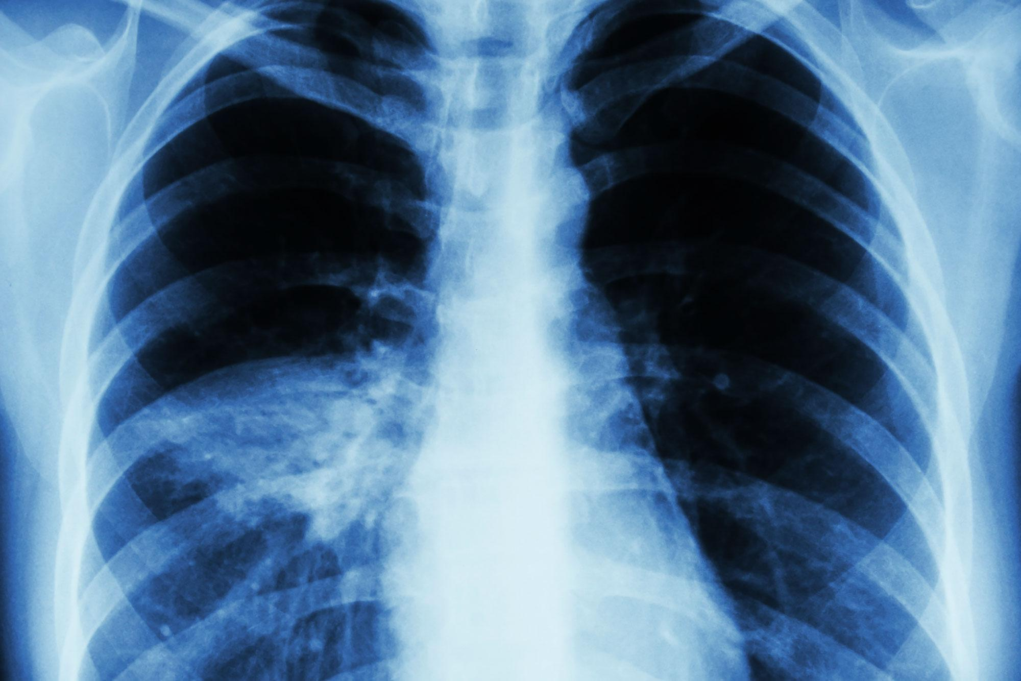 Discovery May Help Patients Beat Deadly Pneumonia