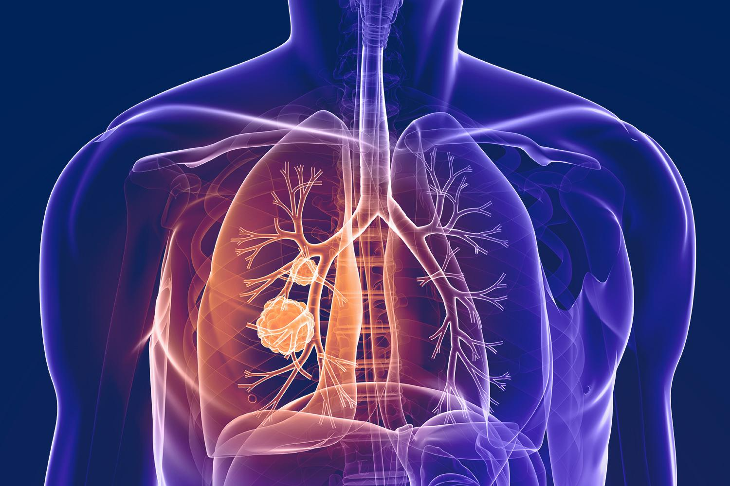 Small cell lung cancer makes up approximately 15 percent of all lung cancer cases.