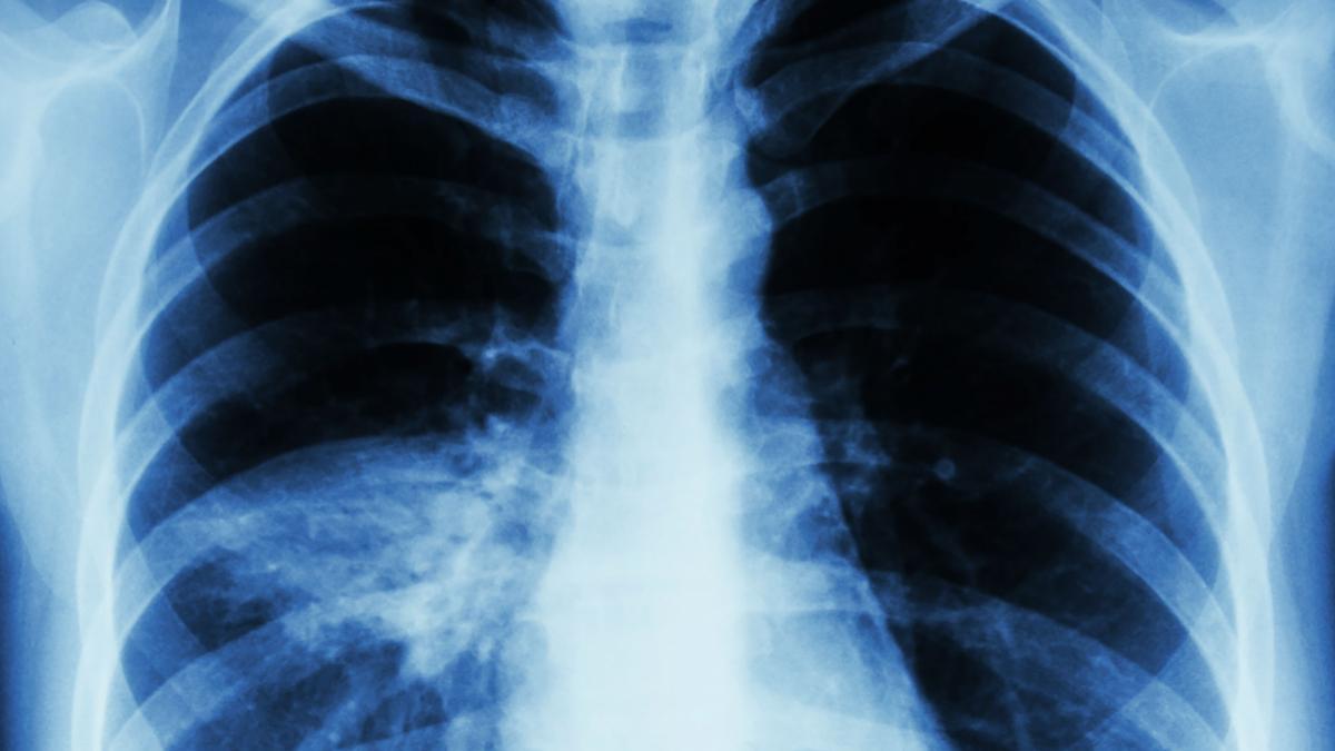 pneumonia_header.jpg