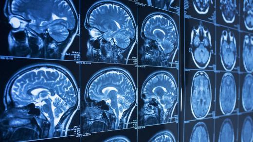 brain_discovery_header.jpg