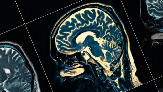 dementia_deaths_increase_header.jpg