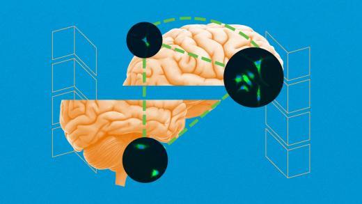 epilepsy_treatments_zc_header.jpg